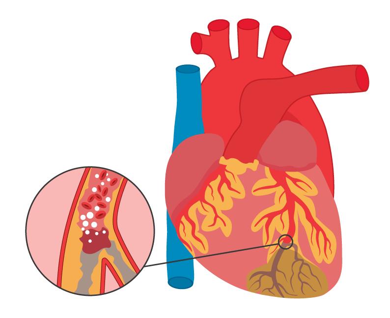 Kleiner Herzinfarkt